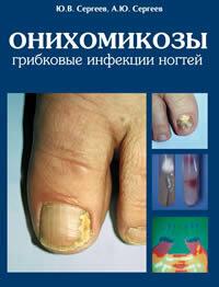 Онихомикозы: грибковые инфекции ногтей, М. 1998